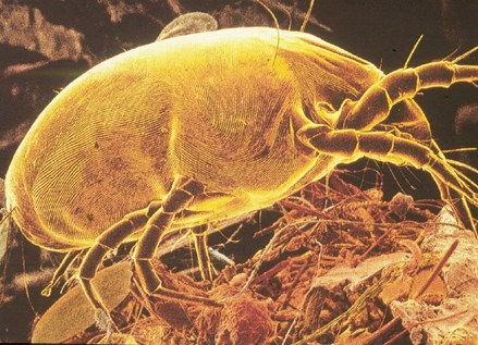 a zoomed in picture of a dust mite